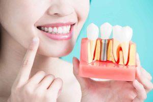 תחזוקת שתלים דנטליים בשיניים